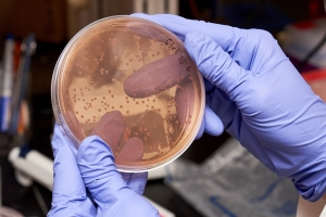 Why are gut microbes so important to our health? What is their function in our bodies?